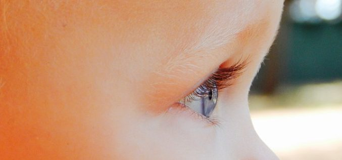 """Cos'è l'ambliopia o """"occhio pigro""""?"""